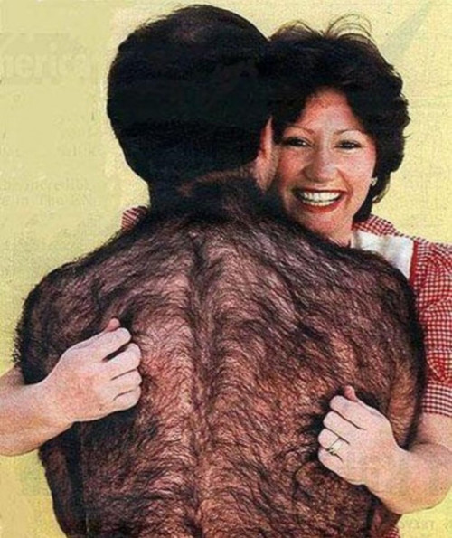 Caption This: Hairy Back [Closed]