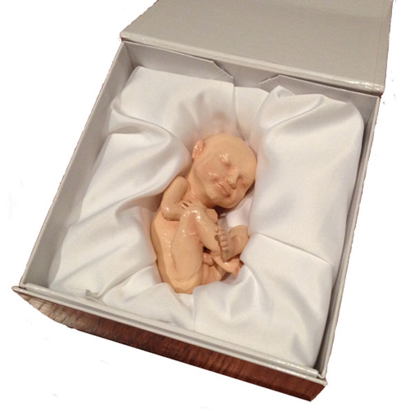 3D Printed Model Of Your Fetus