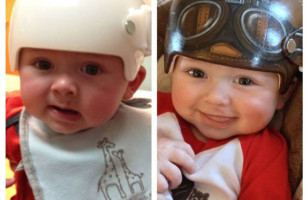 One Special Artist Paints Medical Helmets For Babies
