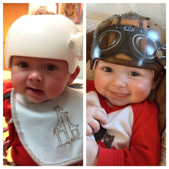 The physician 39 s apprentice artist paints baby 39 s medical for Baby cranial helmet decoration