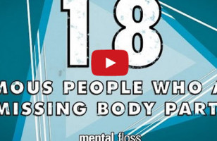 Interesting!: Famous People Missing Body Parts