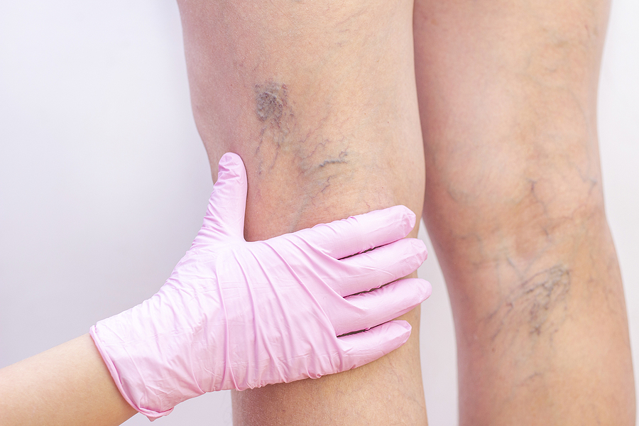 The Best Varicose Vein Treatments in Dallas, TX