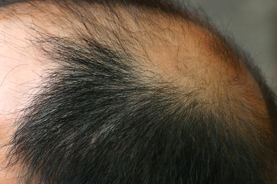 Male pattern hair loss – causes, symptoms and treatment