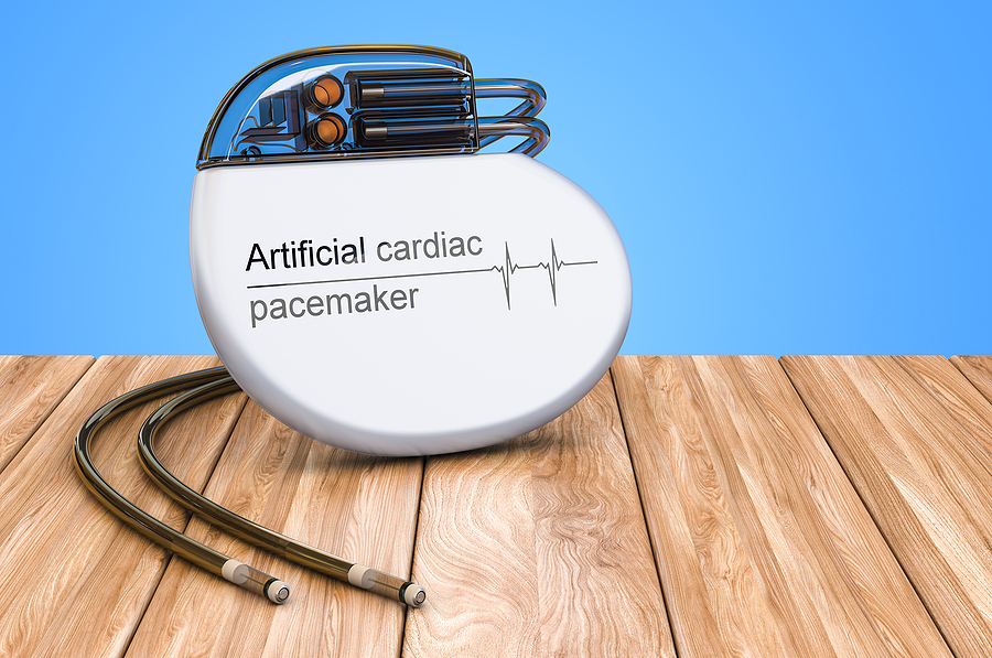 What Is Recovery Time from Pacemaker Surgery