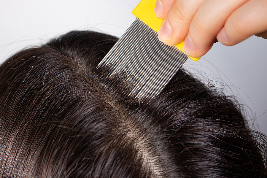 Symptoms you have lice on your hair