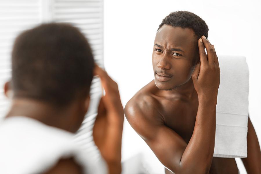 Hair Transplant for African American Hair Type