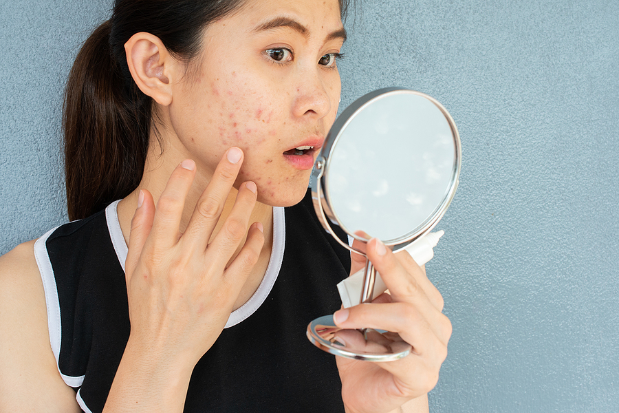 Beauty Guru: Your Guide to Acne Scars & its Treatment Options